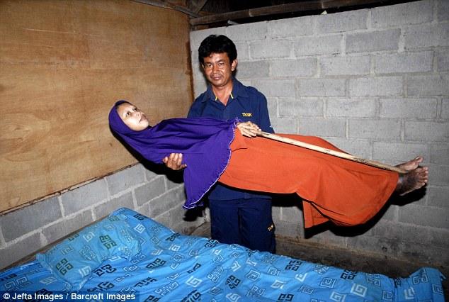Penyakit Tulang Bambu Diidap 'Manusia Kayu' dari Sragen