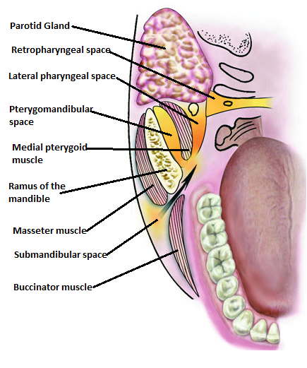 Dentalaka Pterygomandibular Abscess Anatomic Location Etiology