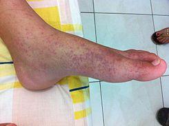 Primer caso de Chikungunya en Puebla