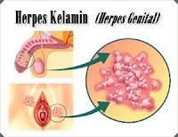Pengobatan Penyakit Herpes Simplex/Genitalis secara Singkat