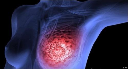 Científicos descubren: que causa cáncer de mama y lo bebemos a diario. Por favor compártelo.!