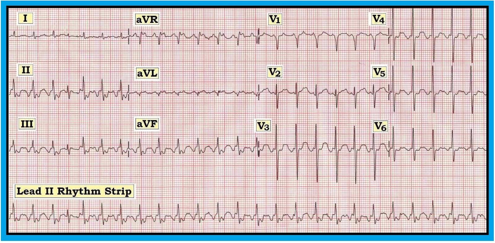 Ecg Interpretation Ecg Interpretation Review 40 Regular Svt List 1 Flutter Psvt Sinus Tachycardia Vagal Maneuver