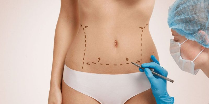Is it safe to get the liposuction treatment in Ludhiana?
