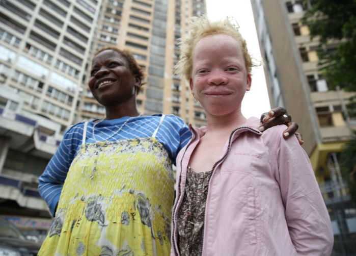 Tanzania has one of the largest populations of people with Albinism in the world