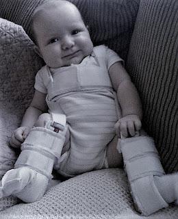 kaki bayi dibalut pengobatan hip dysplasia atau sakit tulang selvik