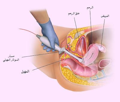 Cervical cancer, Treatment of uterine cancer,سرطان الرحم، علاج سرطان الرحم،