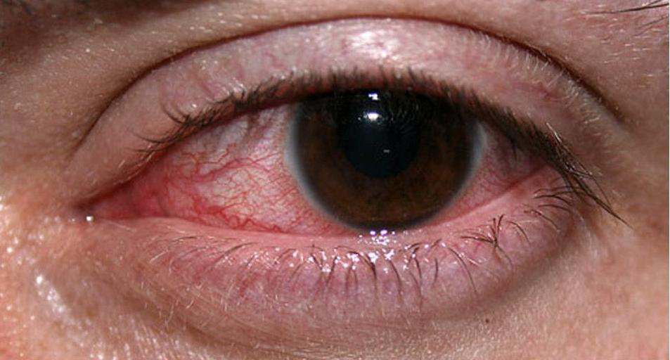 Mengatasi Mata Gatal dan Merah secara Alami