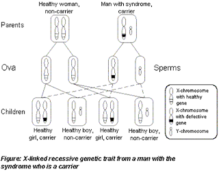The Wiskott-Aldrich Syndrome: An X-linked Primary