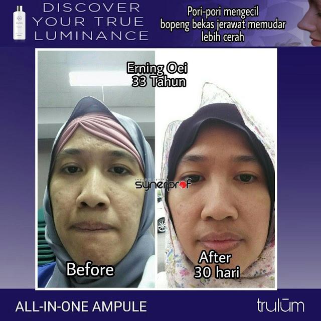 Makin Cantik atau Ganteng Tanpa Harus Ke Dokter Kecantikan di Gerokgak Buleleng