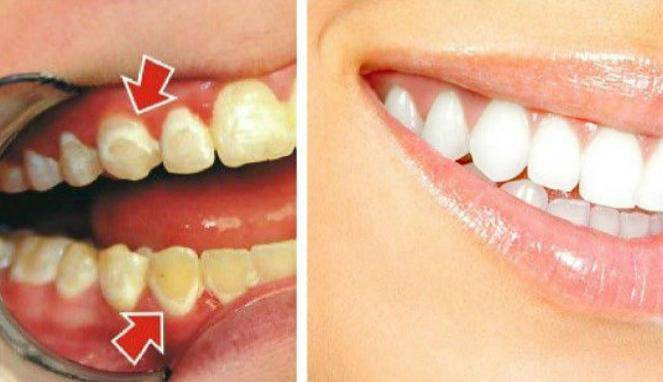 Hilangkan Plak Gigi