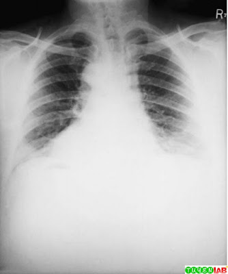 Chest radiograph of a patient who worked in a goat-hair processing mill. Note the widened mediastinum, often seen with inhalation anthrax.