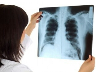 Mesothelioma Cancer: Prevention of mesothelioma is better than cure
