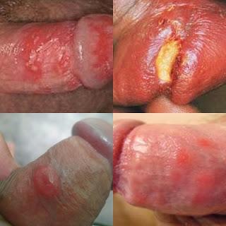 obat untuk atasi koreng dan luka ruam di batang penis