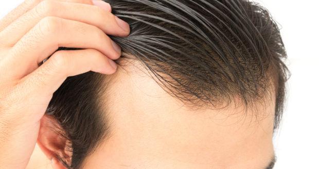 تساقط الشعر الوراثي وغير الوراثي