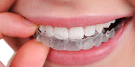 Daftar Harga Behel / Kawat Gigi Tahun 2021 Lengkap