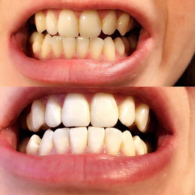 cara memutihkan gigi dengan kulit jeruk dan kulit pisang