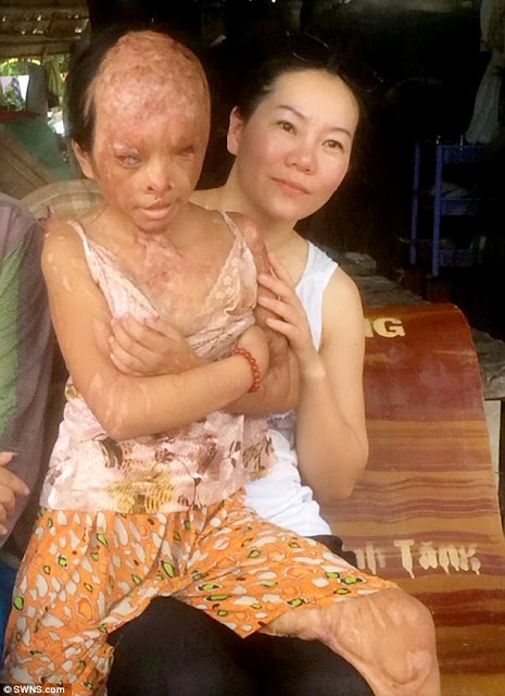Stranger Poured Acid on a Poor Little Girl Leaving Her Disfigured! Now She Is in Dire Need of Your Help!