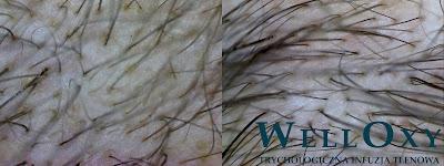 Zabiegi łysienie androgenowe warszawa