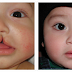 Cleft Lift Procedure – Overview and Cost Required