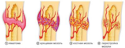 При переломах для быстрого срастания костей