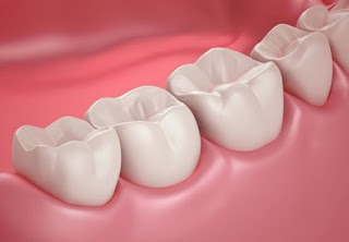 Răng sâu có nên trám không?