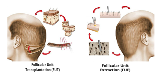 fue hair transplant vs fut hair transplant