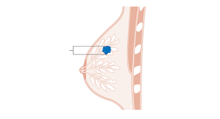 Tanda Tanda (Simptom) Kanser (Barah) Payudara