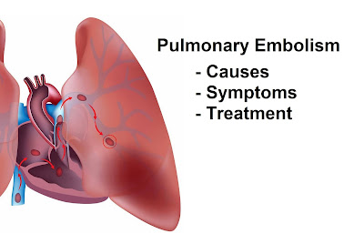 A pulmonary embolism is a closure of the pulmonary artery through a blood clot Pulmonary Embolism (Blood Clot In Lung) Causes, Signs And Symptoms, Test And Treatment