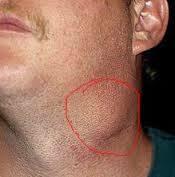 Pembengkakan kelenjar getah bening yang dapat diobati tanpa operasi