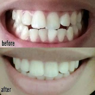 teeth trainer testimoni 2