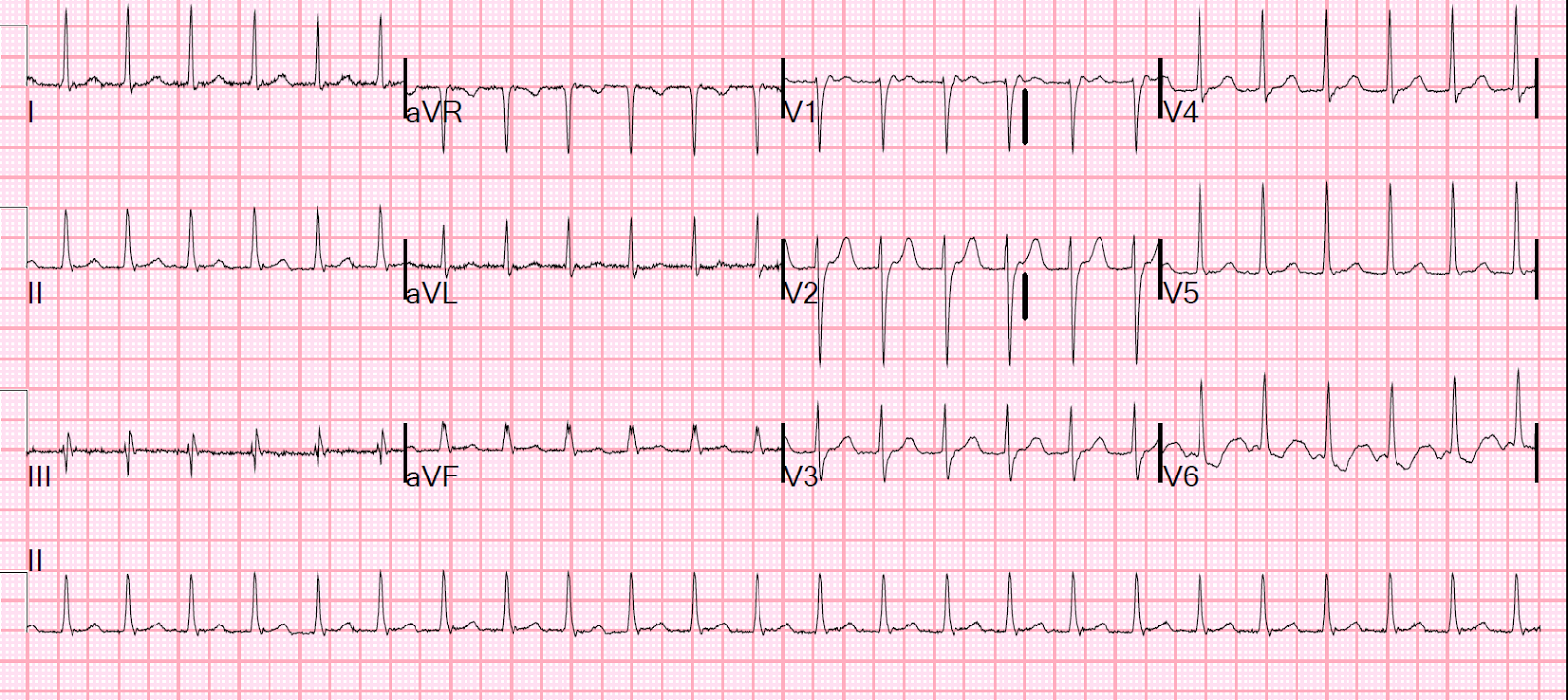 Dr Smith S Ecg Blog An Apparent Svt That Does Not Persistently Correct With Adenosine