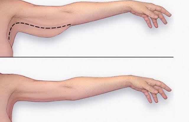 Nguyên nhân hình thành mỡ bắp tay