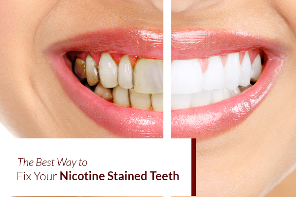 Fix Nicotine Stained from Teeth