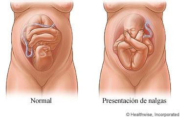 33 semanas de embarazo posicion del bebe