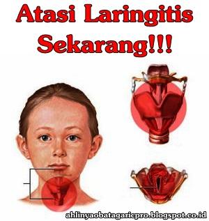 Obat Laringitis