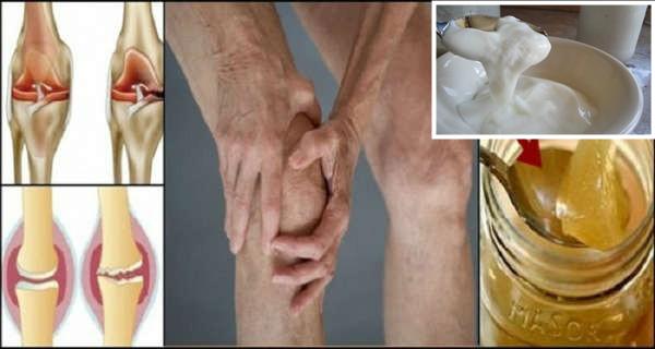 Artrita gutoasa simptome si tratament