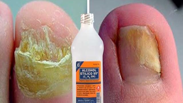 No lo permitas, devora tú los hongos de tus uñas y pies definitiva con este remedio casero