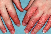 contact dermatitis home remedy