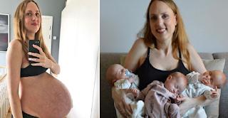 Τρίδυμη κύηση: Μητέρα δείχνει το σώμα της κατά τη διάρκεια της εγκυμοσύνης και μετά τον τοκετό