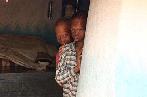 Dijuluki Si Bocah Hantu di India