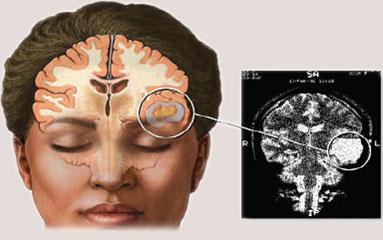 Gejala Kanker Otak dan Penyebab Tumor Otak | Lembaga ...
