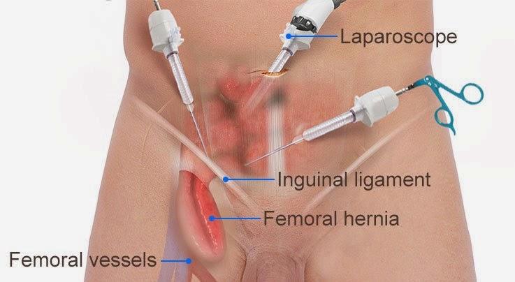 chronic groin pain after hernia surgery