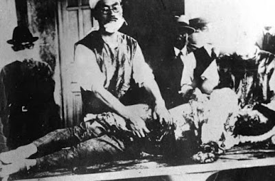 Unit 731 tidak pernah melakukan anestesi atau bius kepada korbannya