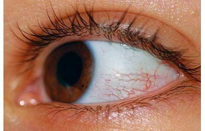 Iritasi serta mata merah
