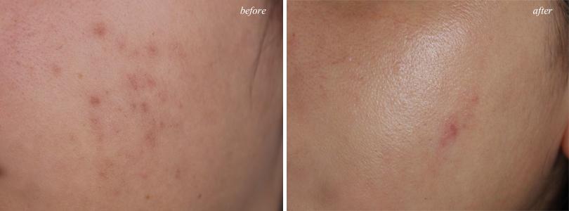 neutrogena letssolveit drugstore normal oily skincare acne routine