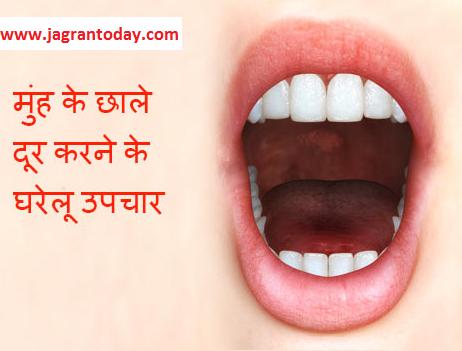 Muhn Aane ke Kaaran Lakshan or Upchar