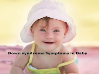 Down syndrome Symptoms in Baby