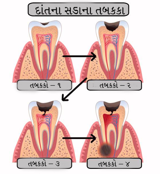 જામનગર dentist bharat katarmal explain dental caries