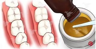 معجون أسنان طبيعي لتتخلصي من الاصفرار ورائحة الفم الكريهة !!! روعة