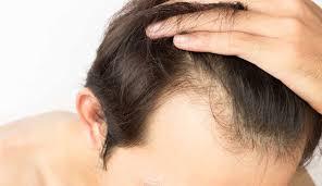 3 Best Hair Restoration In 2018